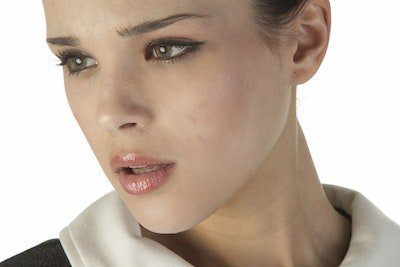 Well Defined Chin Augmentation