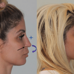 Revision-Rhinoplasty-Before-After-Side