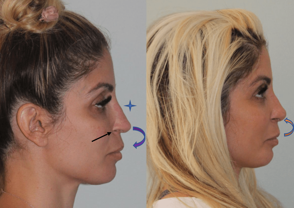 Female Revision Rhinoplasty Before and After Side