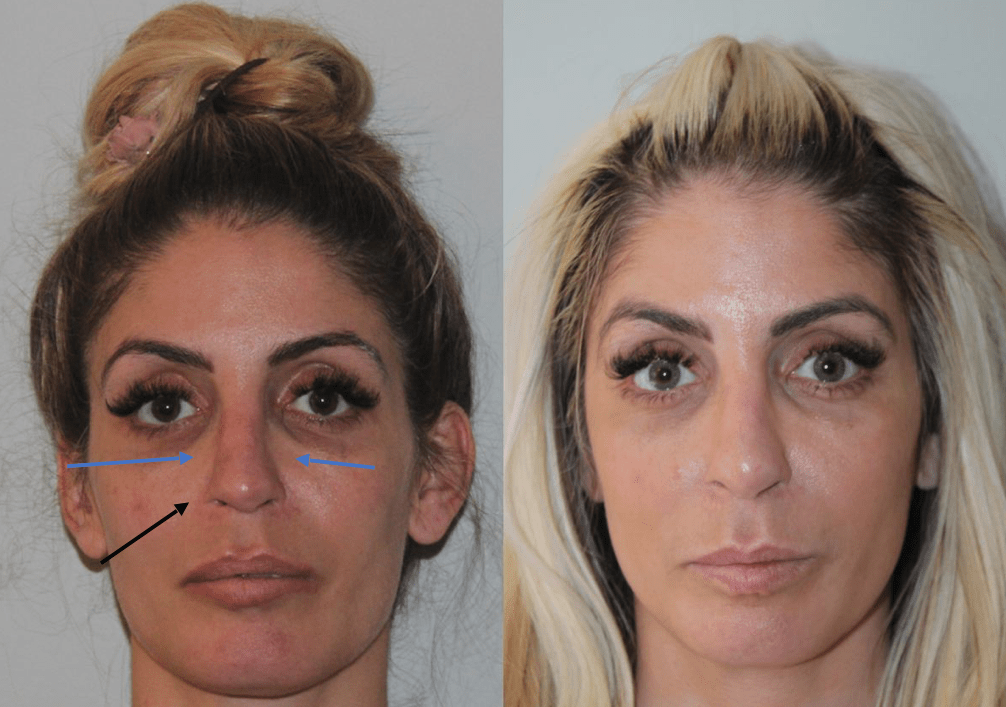 Female Revision Rhinoplasty Before and After Front