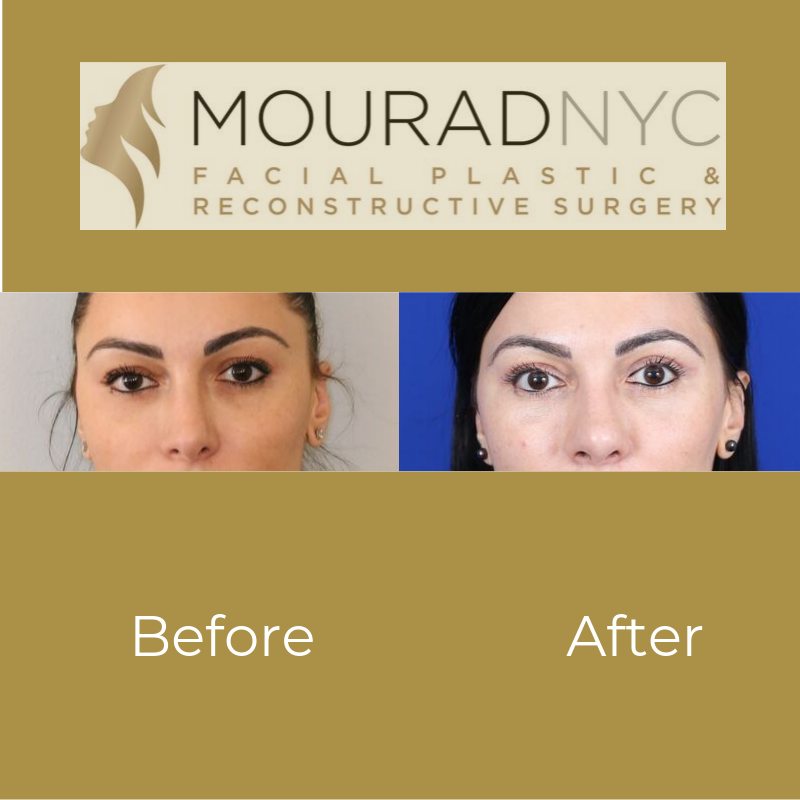 Revision Rhinoplasty And Blepharoplasty Before and After Front View