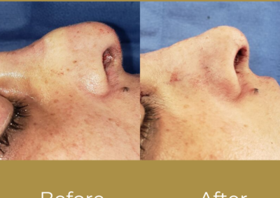 Female Ethnic Rhinoplasty Before and After