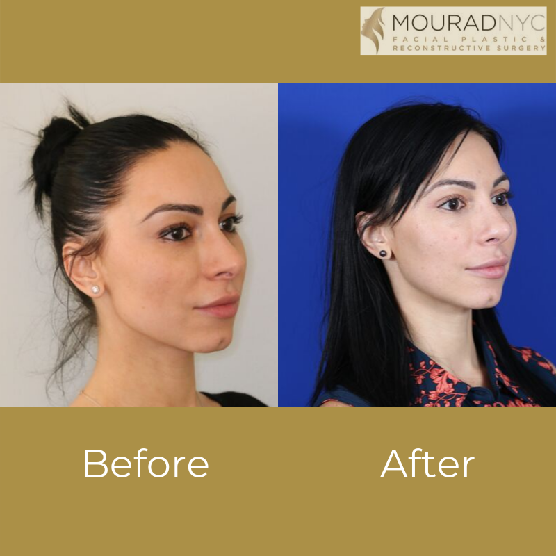 Revision Rhinoplasty And Blepharoplasty Before and After Angle View