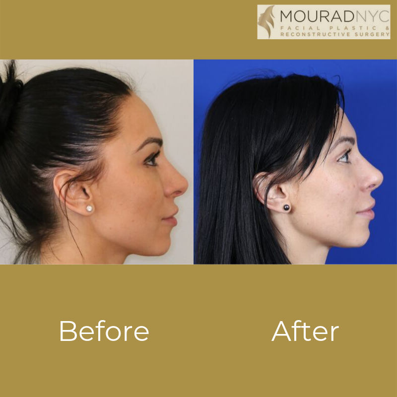 Revision Rhinoplasty And Blepharoplasty Before and After Side View