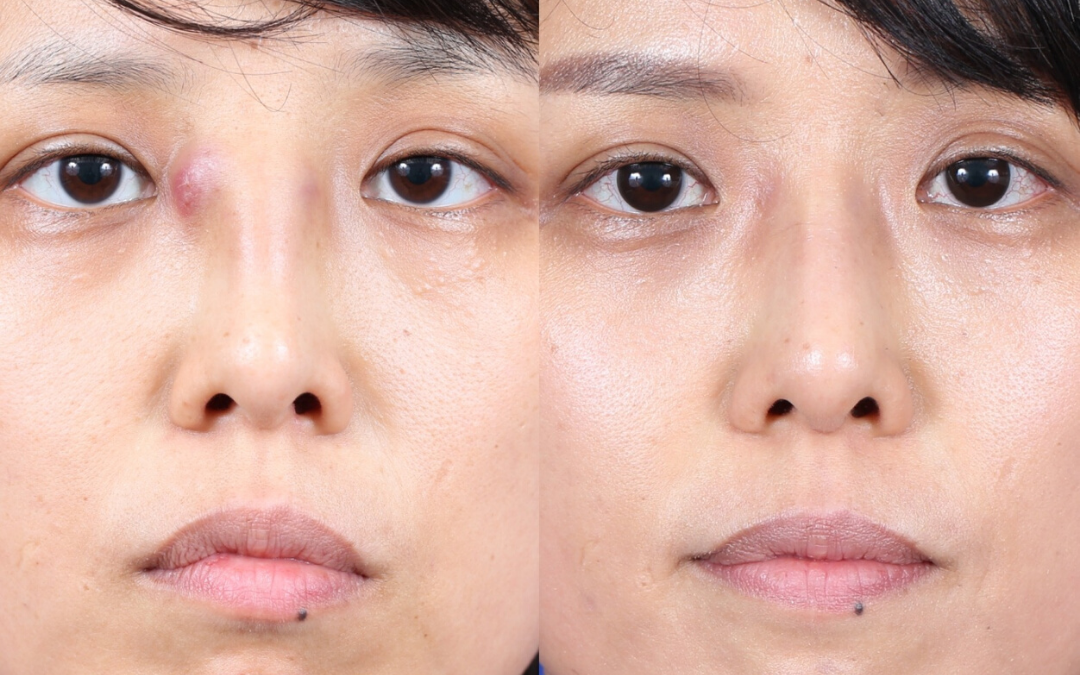 Female Ethnic Revision Rhinoplasty Before and After