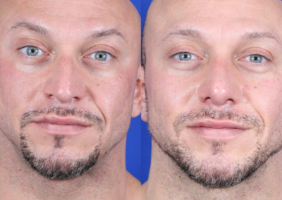 Male Deviated Septum / Rhinoplasty Before and After