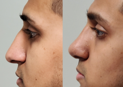 Male Closed Rhinoplasty