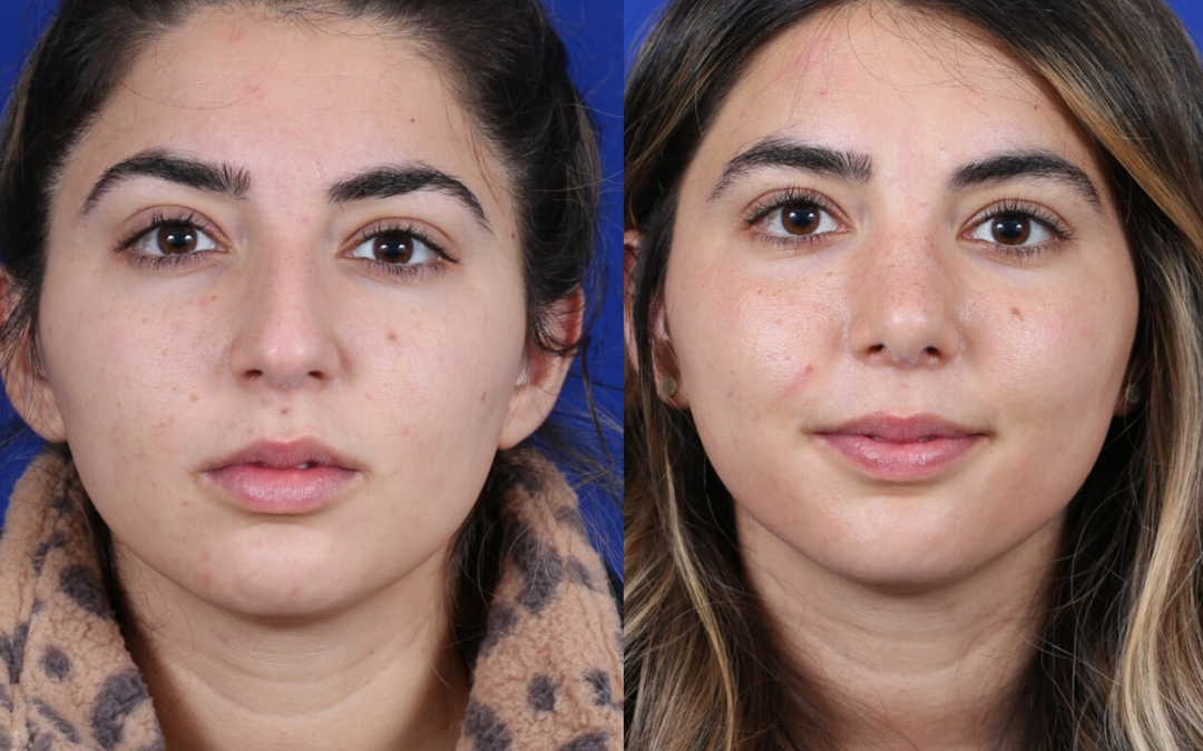 Female Revision Rhinoplasty 4 Months Before and After