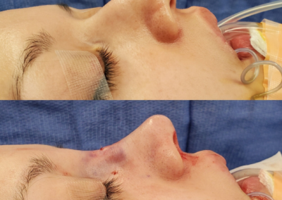 Female Closed Rhinoplasty