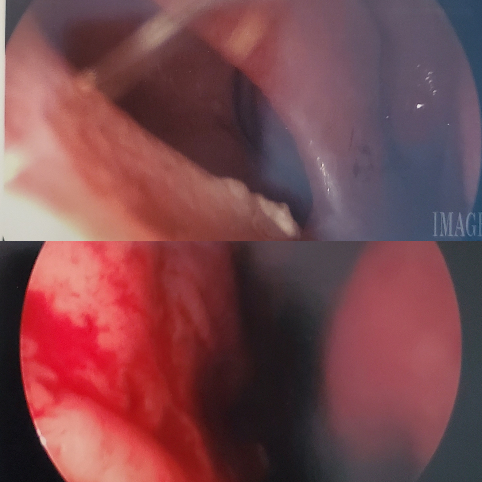 Female Septal Perforation Before and After