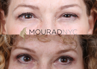 Female Blepharoplasty Before and After