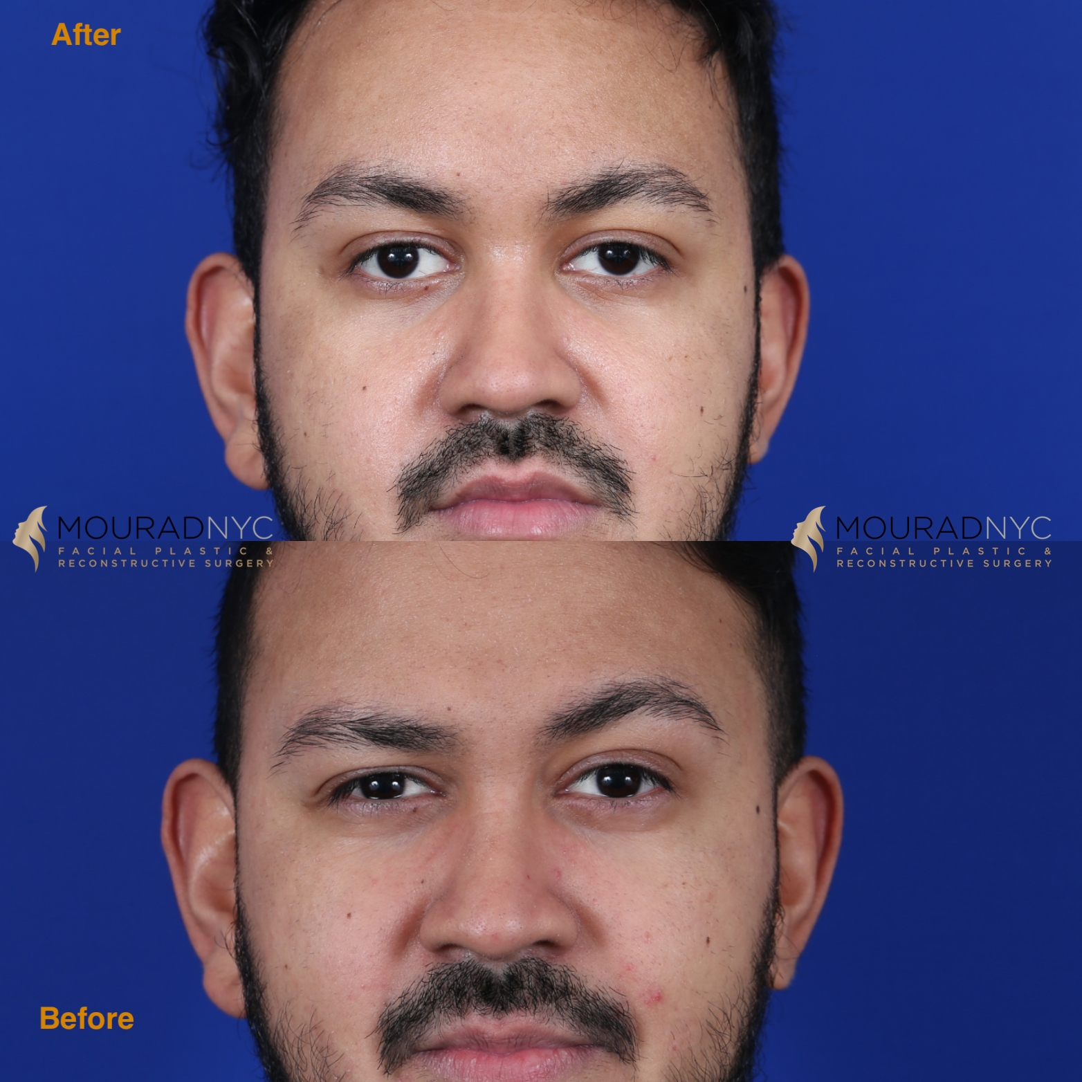 Male Brow Lift Before and After