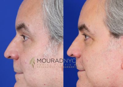 Male Facelift And Necklift Before And After