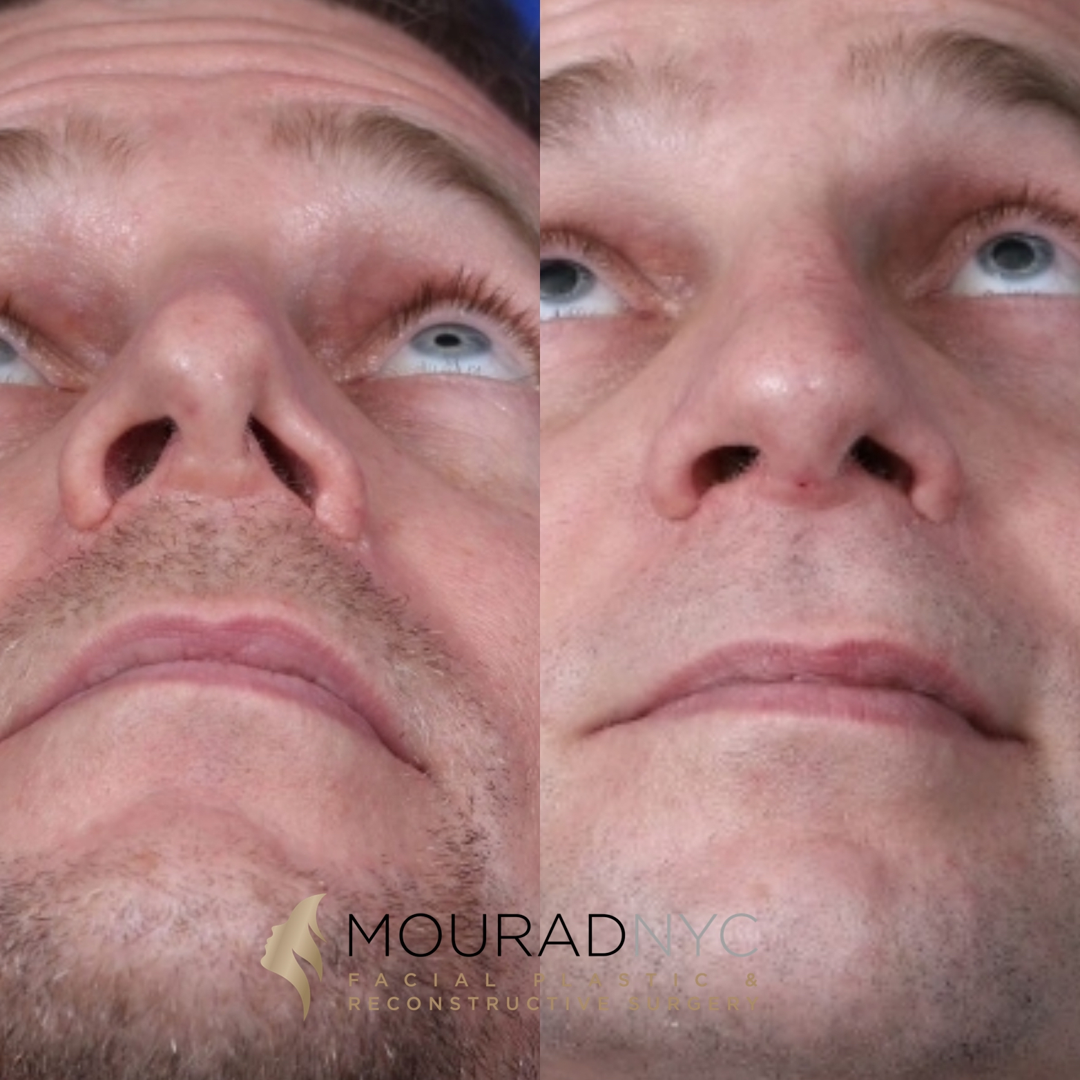 Male Revision Rhinoplasty Before and After