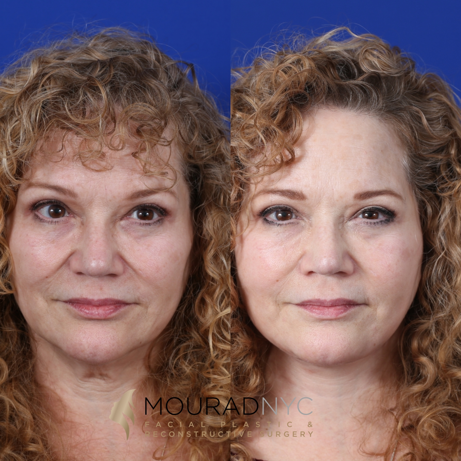 Female Facelift And Necklift Before And After
