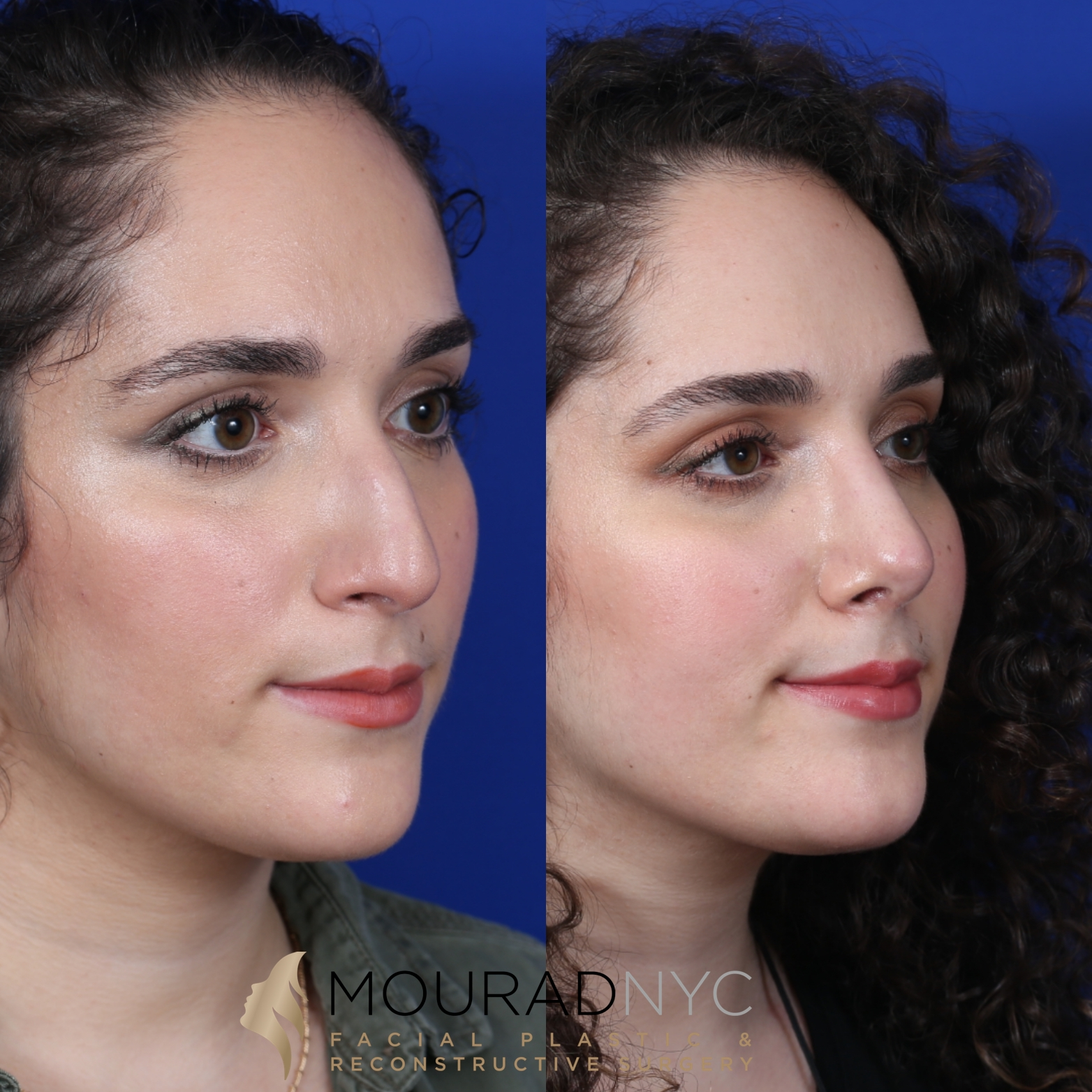 Female Closed Rhinoplasty Before and After