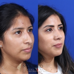 Female Open Rhinoplasty Before and After