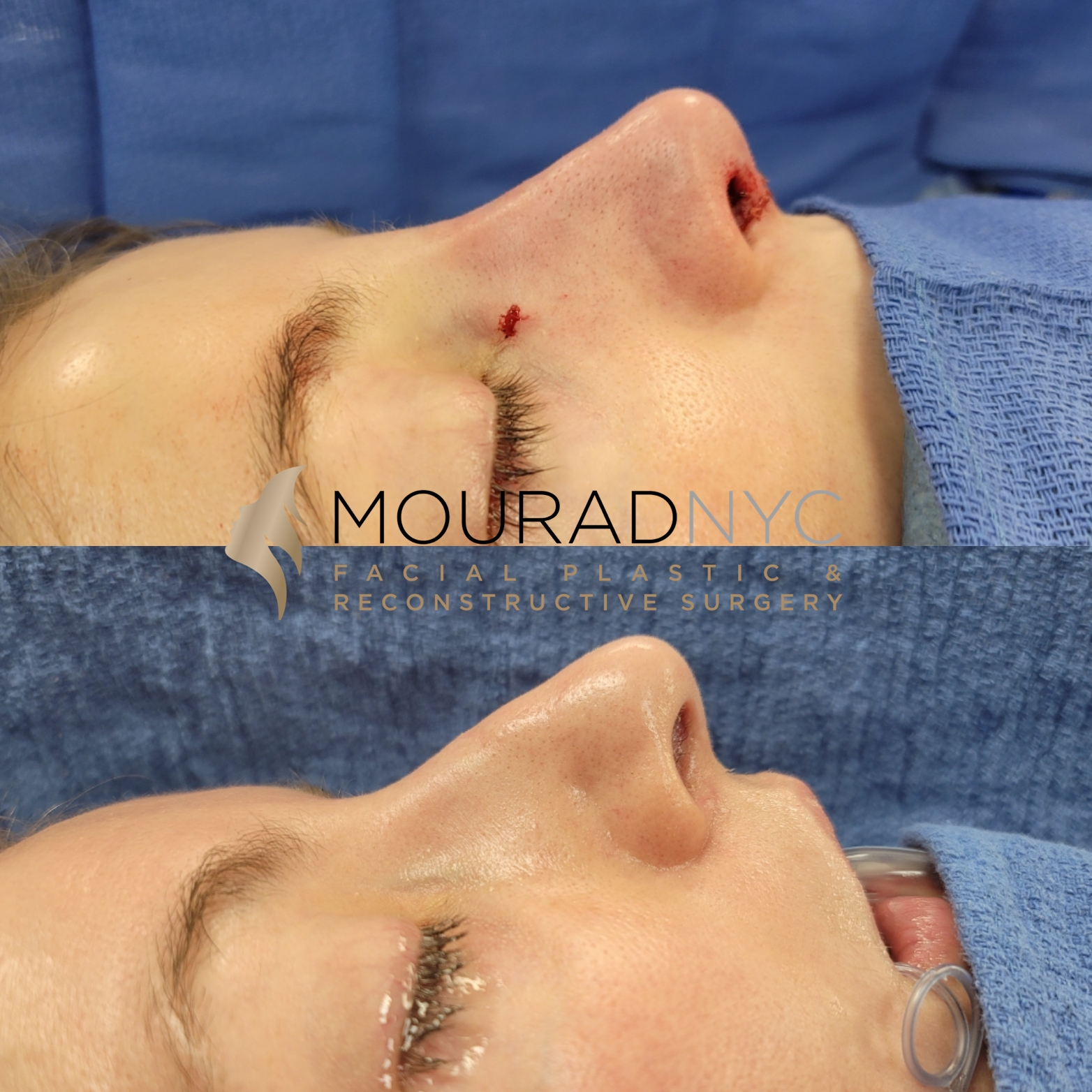Female Revision Rhinoplasty Before and After