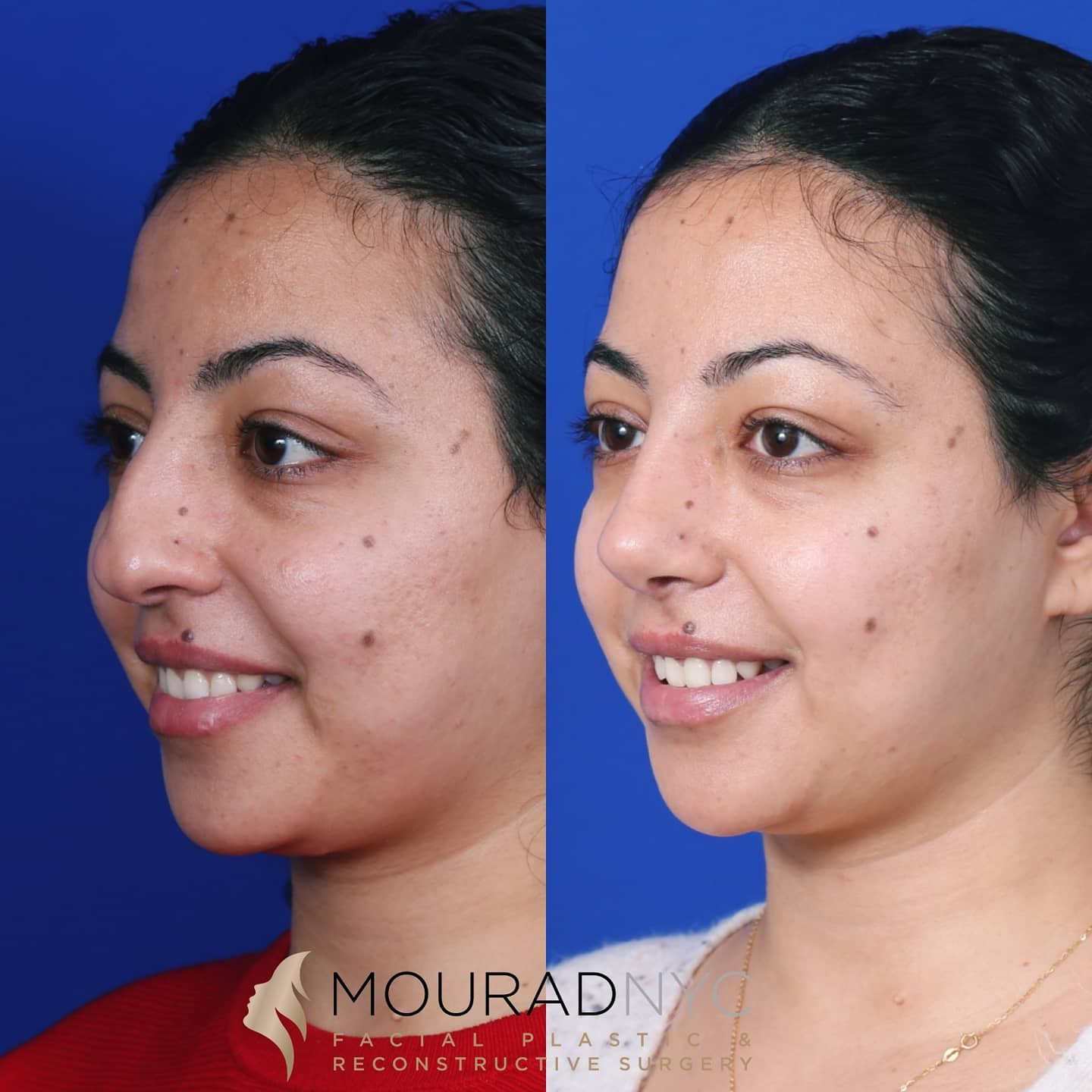 Ethnic Rhinoplasty Before and After
