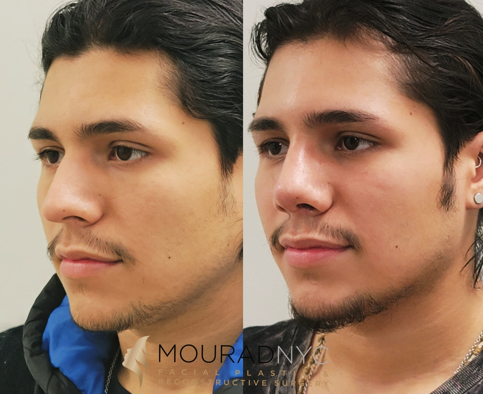 Male Rhinoplasty Before and After