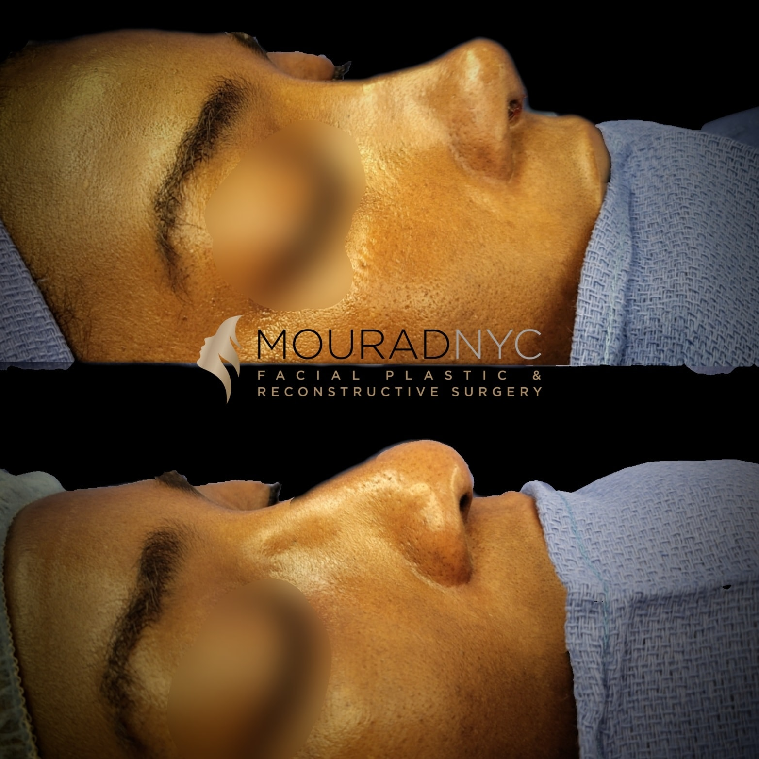 Before and After Ethnic Rhinoplasty