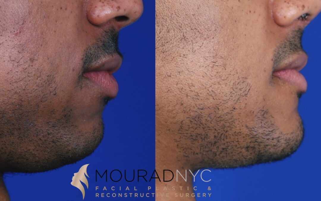 Sliding Genioplasty Before and After