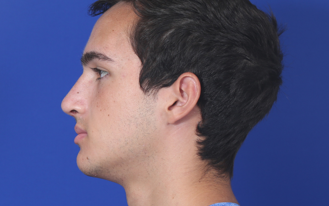 Before and After Rhinoplasty Male