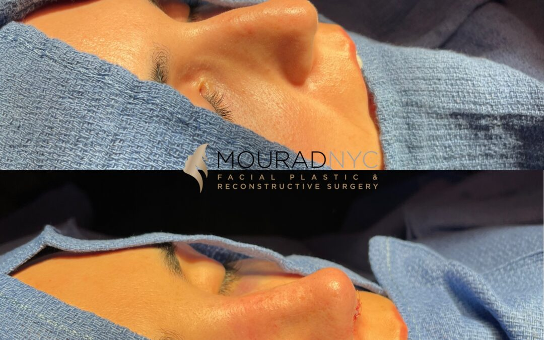Rhinoplasty Before and After Female