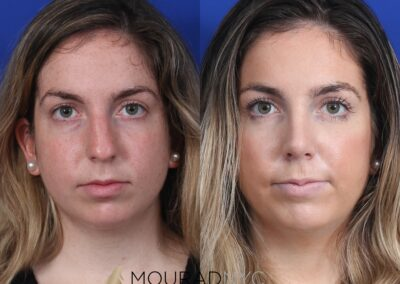 Open Rhinoplasty Before and After Female